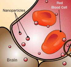 Nanotechnology used in the medical field