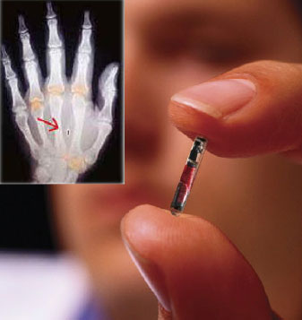 RFID Chip in hand